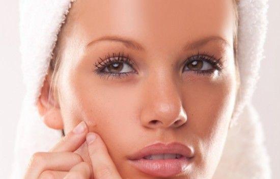 cure-acne-brufoli-rimedio