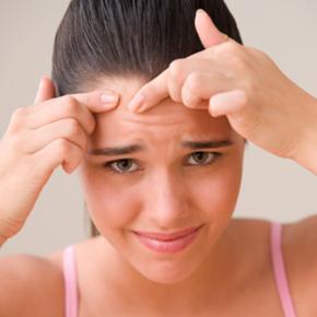 acne-face-girl