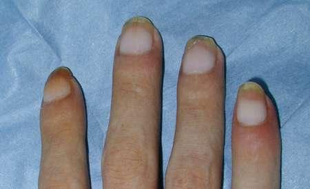 Interno significa da un fungo di risposte di unghie il prezzo