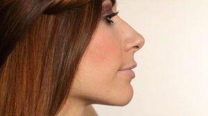 come minimizzare i pori dilatati