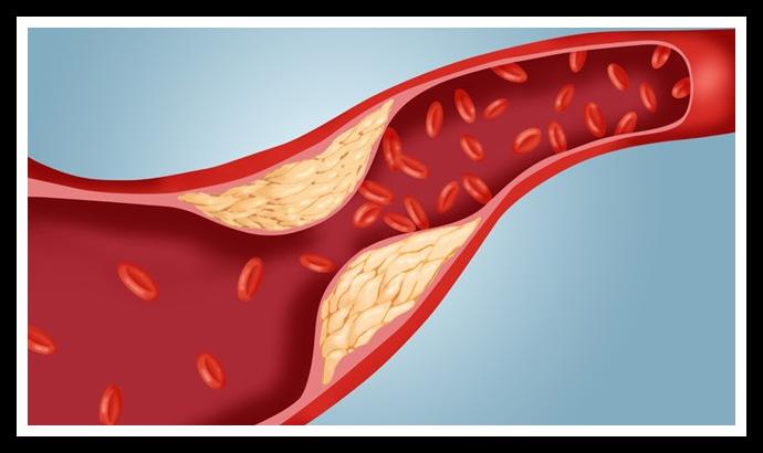 colesterolo-new