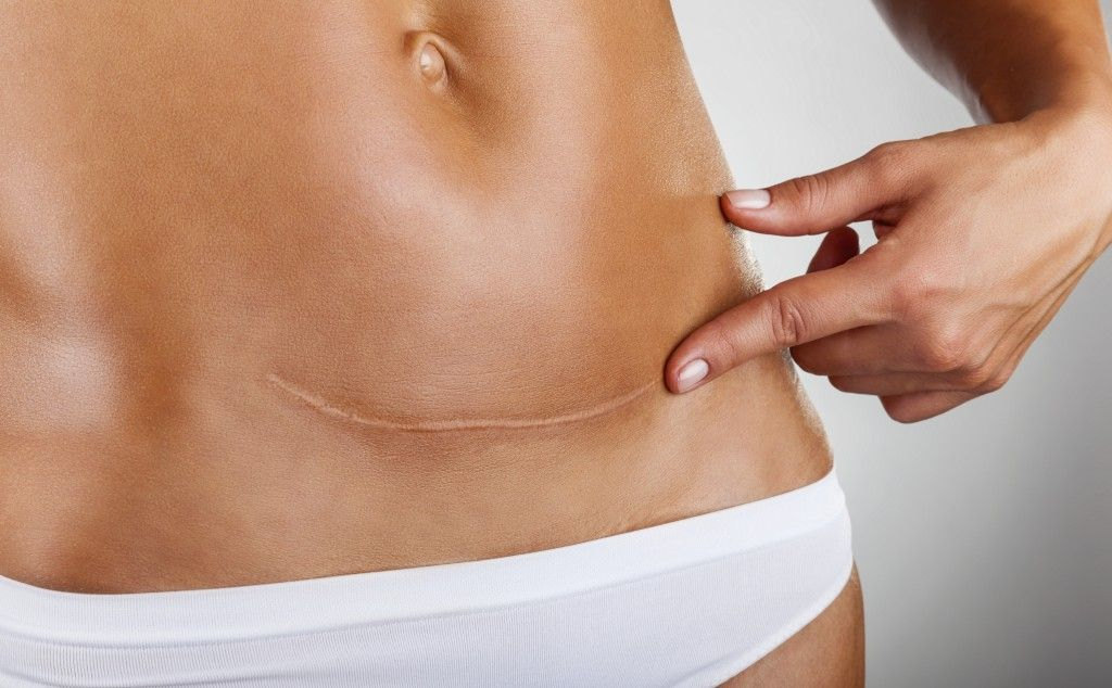 Scar of caesarean section