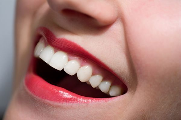 Denti-bianchi-in-6-mosse