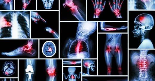 Il significato dei dolori fisici più comuni