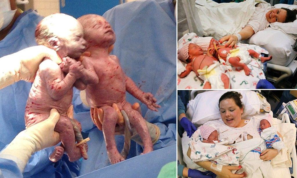 Due gemelline nate tenendosi per mano, ecco come sono belle oggi, dopo due anni