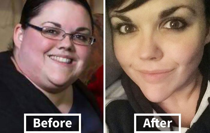 30 foto incredibili prima/dopo rivelano come la perdita di peso influisce sul tuo viso