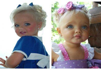 """Ricordate Aira Brown, la """"bambola vivente""""? Ecco com'è diventata"""
