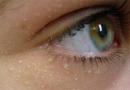 Punti bianchi o grani di miglio sul viso: rimuovili facilmente con questi rimedi naturali