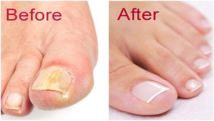 Trattamento contro i funghi dell'unghia del piede (onicomicosi) che puoi fare a casa