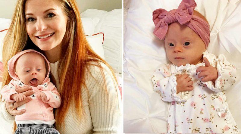 Mamma condivide sui social le foto della sua piccola con la sindrome di down – Facendo impazzire letteralmente il web
