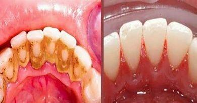 """Placca: ecco alcuni semplici trucchi casalinghi che ti fanno evitare temporaneamente """"la poltrona del dentista"""""""