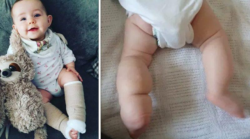 """La mamma chiede sui social di non prendere in giro la figlia appena nata per le sue """"gambe grosse"""" – Ha una malattia incurabile"""