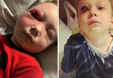 La madre sente uno strano rumore nel cuore della notte – Accende la luce e trova il bambino con l'occhio infettato