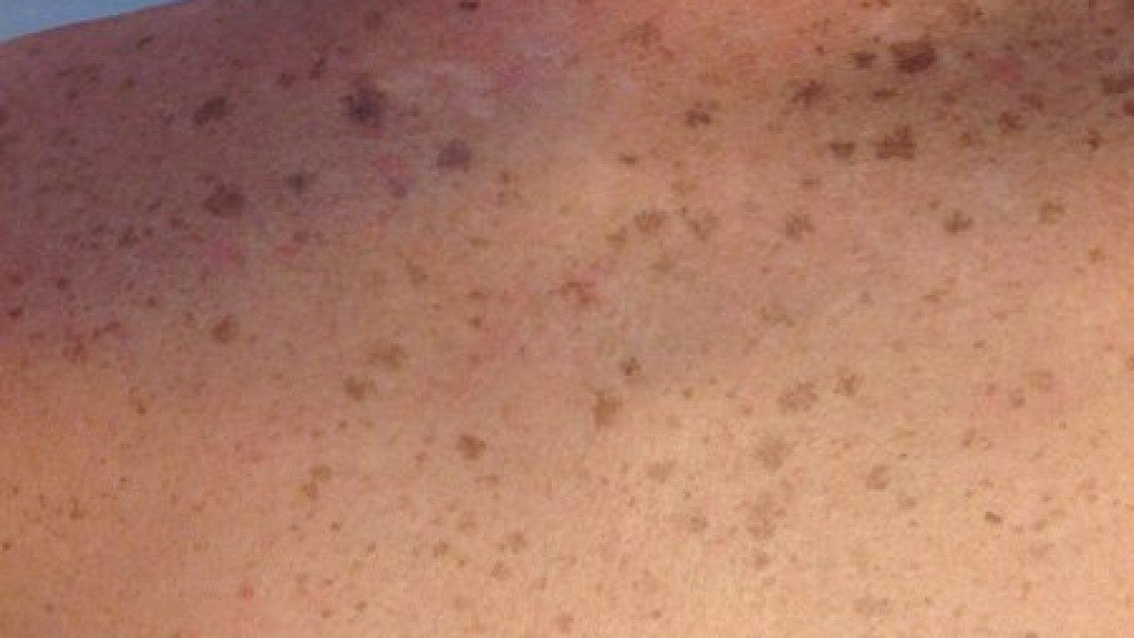 Macchie Di Unto Sulla Pelle macchie scure della pelle, come eliminarle anche con rimedi
