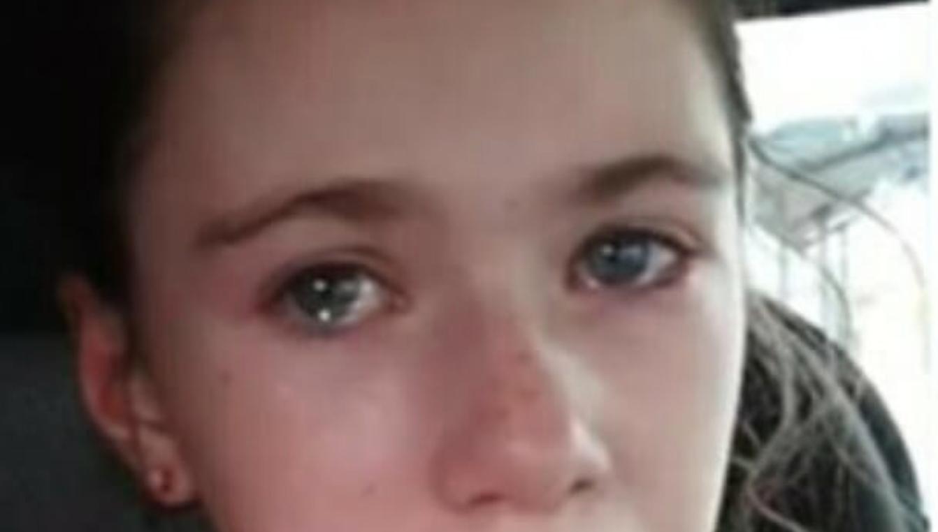 Ha 12 anni, disabile, ed è stata aggredita dai bulli: la mamma pubblica un video straziante