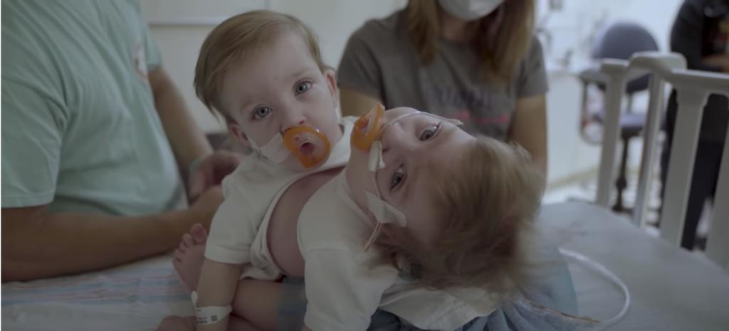 le gemelle siamesi prima dell'intervento